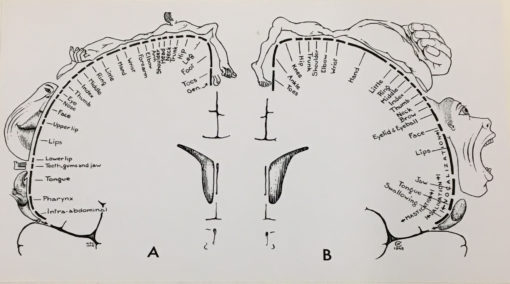 homunculus Revolts: Re-Figuring the Neurological Subject